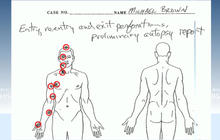 Michael Brown's family releases independent autopsy results