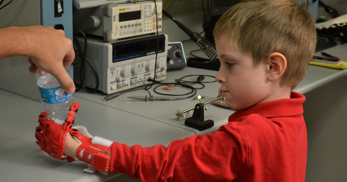North Face Log >> Student makes 3D printed prosthetic hand for boy - CBS News