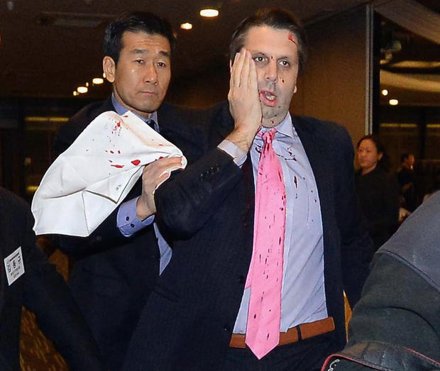 In handout image provided by The Asia Economy Daily newspaper, U.S. Ambassador to South Korea Mark Lippert is seen after getting attacked on March 5, 2015 in Seoul, South Korea