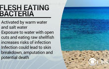 Florida health officials warn beachgoers of flesh-eating bacteria