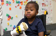 Meet Zion, the first child to get a double hand transplant