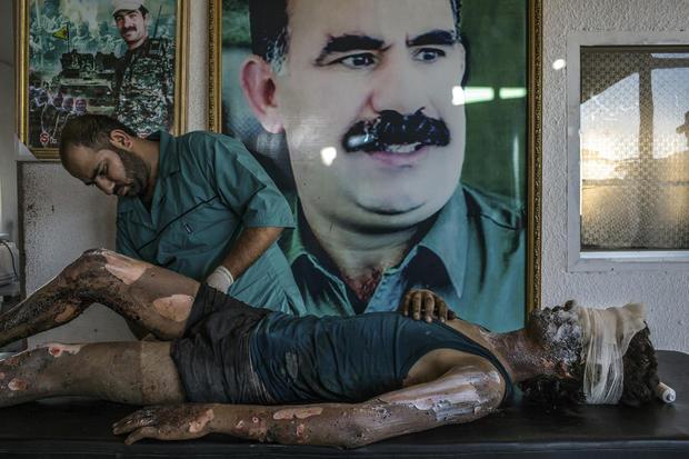 c-mauricio-lima-is-fighter-treated-at-kurdish-hospital.jpg