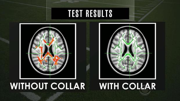 concussion-2.jpg