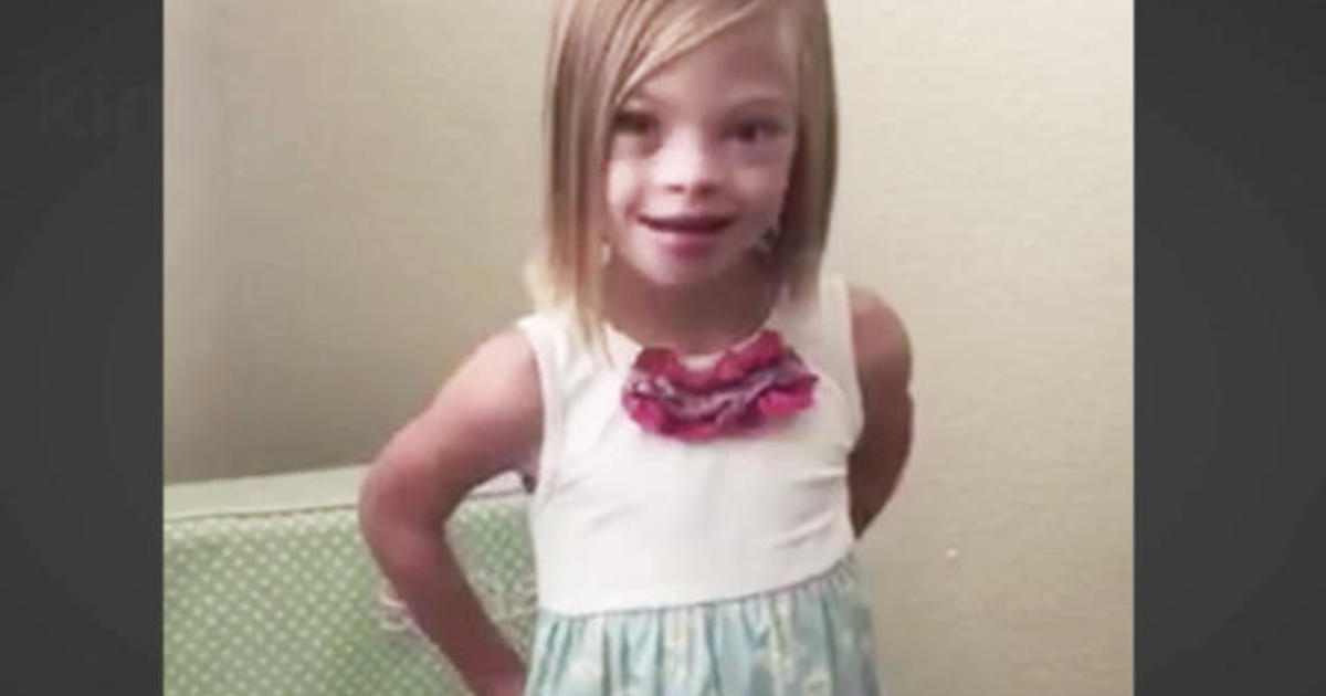 This 7-Year-Old Girls Message About Down Syndrome Is -2889