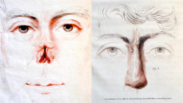 joseph-constantine-carpue-nasal-reconstruction-surgery-620.jpg