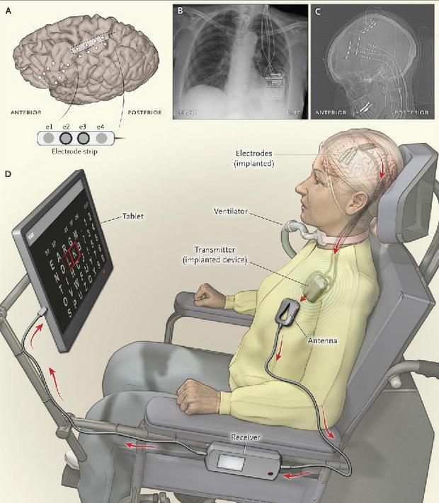 als-brain-implant-illustration.jpg