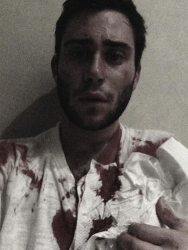 Jacob Nolan selfie taken after attack on Dr. Weiss