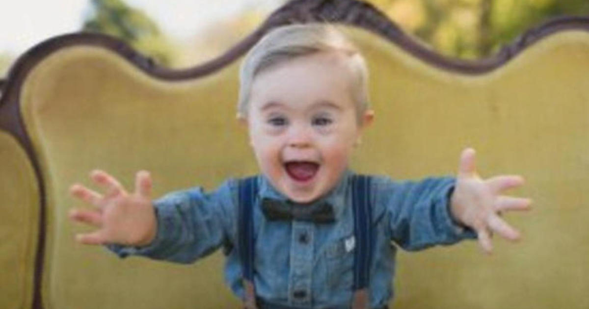 Toddler with Down syndrome stars in kid's clothing ad - CBS News