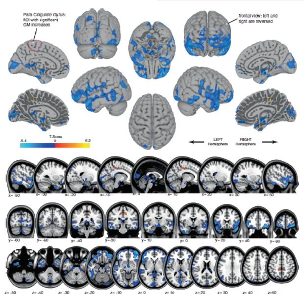 astronaut-mri-brain-shape.png