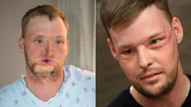 Body of chimp attack victim Charla Nash rejecting face transplant