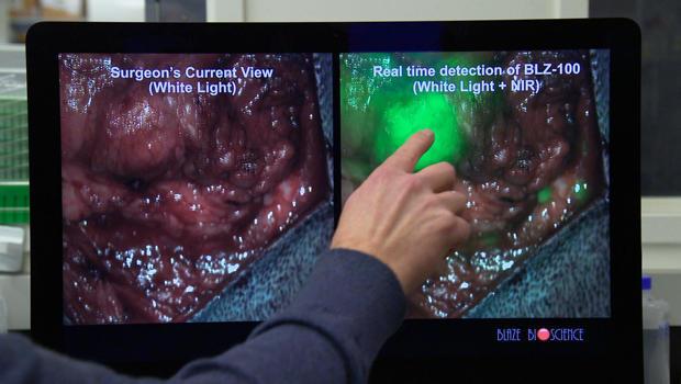 On The Horizon: Scorpion venom as cancer treatment - CBS News