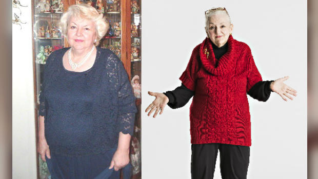Grandmother's 140-pound tumor removed