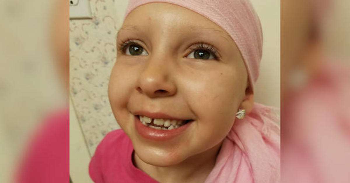 Meet the little girl with alopecia who makes baldness beautiful ...