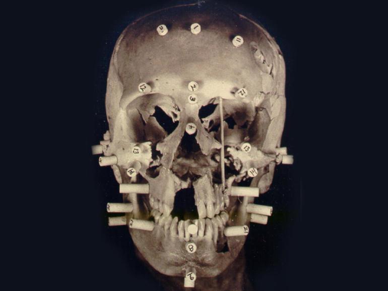 Annie Tahan skull reconstruction