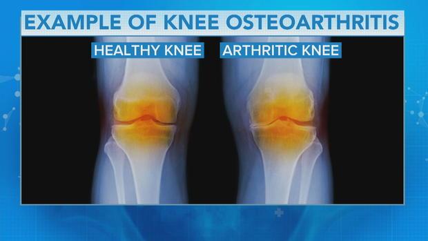 Sports medicine doctor on how to combat knee arthritis