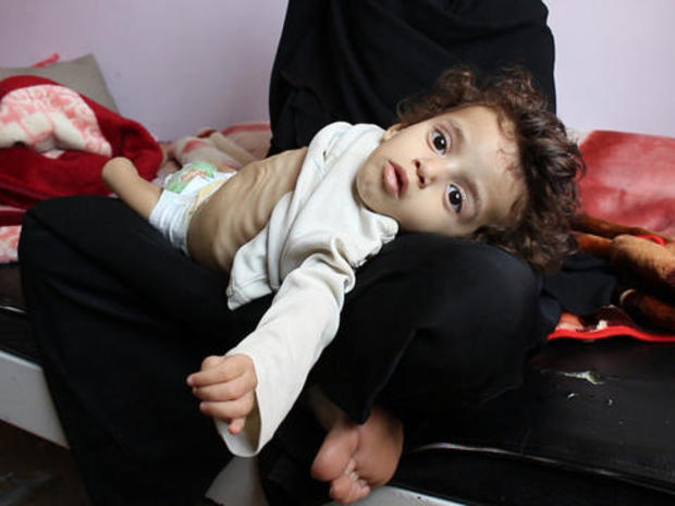 60 Minutes, barred from Yemen, still got the footage