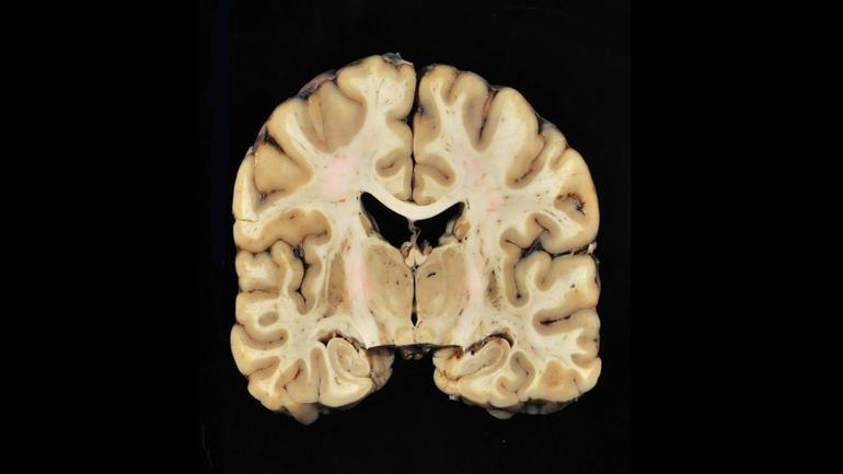 brain-with-cte.jpg