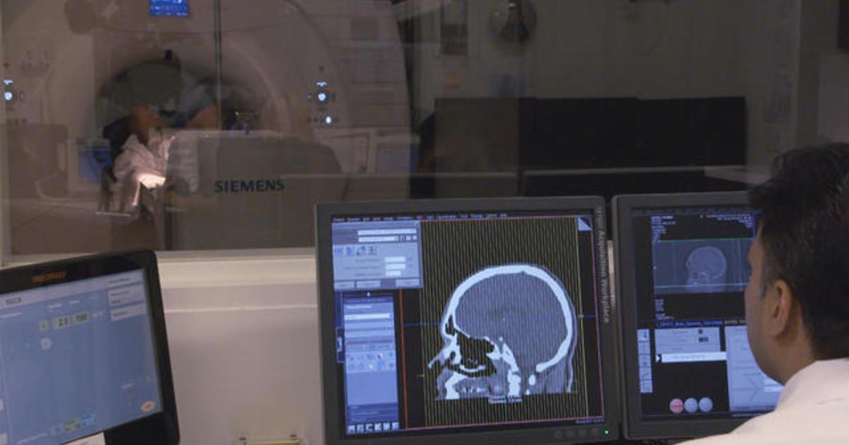 Brain Imaging Studies Seek Signs Of >> Scientists Seek Veterans To Help Treat Cte Cbs News