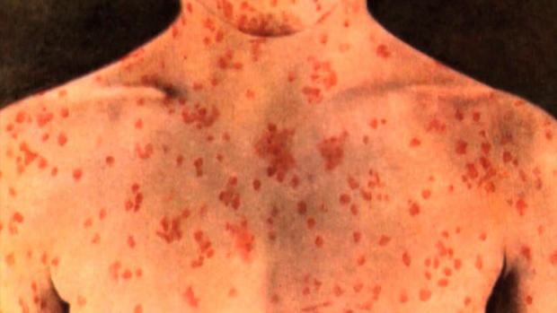 Aucklanders Encouraged To Vaccinate As Measles Cases Continue To Rise