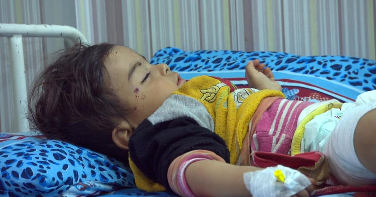 Doctors in Syrian city struggle to treat flood of airstrike victims