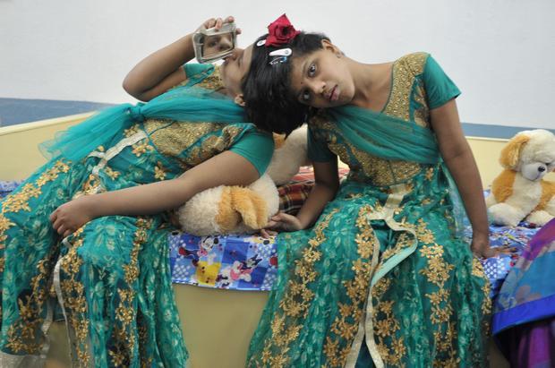 INDIA-HEALTH-TWINS