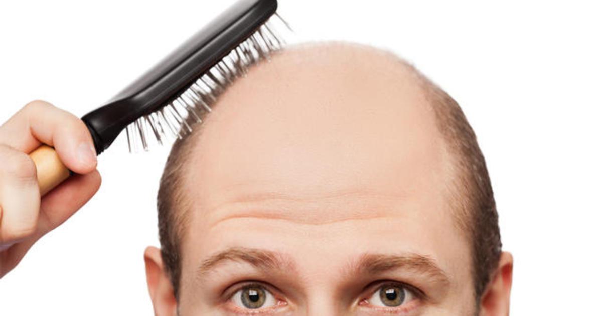Image result for baldness