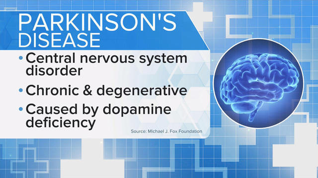 Your dreams could be an early clue to Parkinson's disease