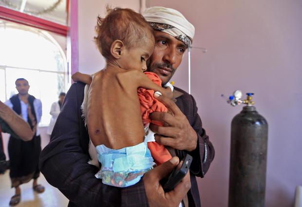 U.N.: Half of Yemen's Population May Soon Face Famine