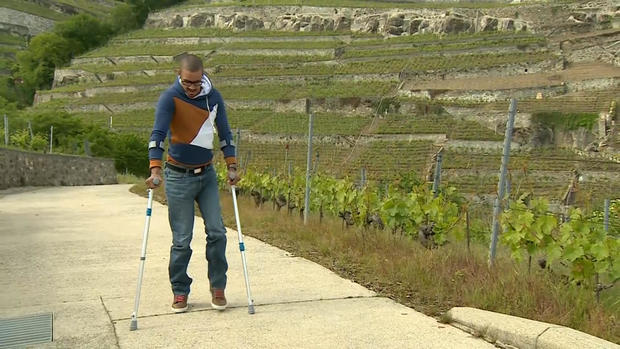 Trio of paraplegics walk again thanks to electrical stimulation