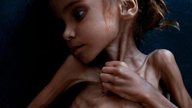 1102-cbsn-yemeni-mny-1702368-640x360.jpg