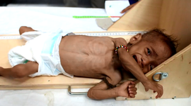 181120-yemen-civil-war-children-malnutrition-04.png