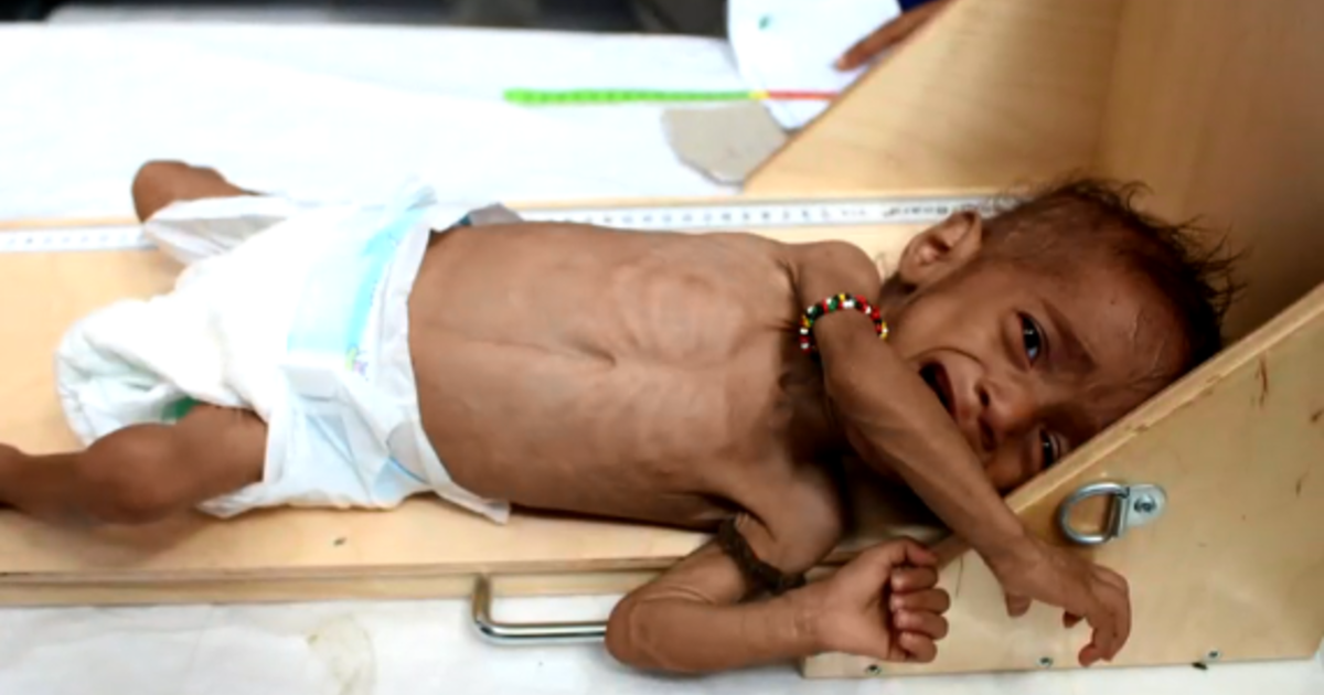 cbsnews.com - Yemen's most innocent victims: 85,000 children under 5 may have died from starvation, report says