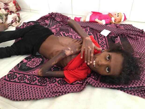 yemen-gallery-sadaq-hospital-adenimage-2018-12-07-at-13-09-38.jpg