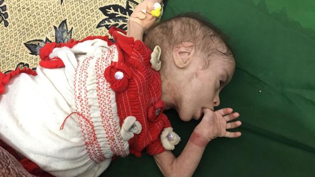 starving-in-yemen.jpg