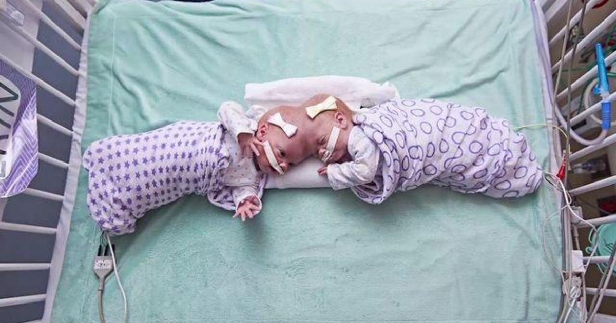 Formerly conjoined twins thriving after rare, complex surgery separated their brains