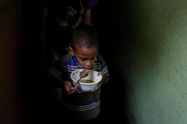 Stories of Hunger in Venezuela