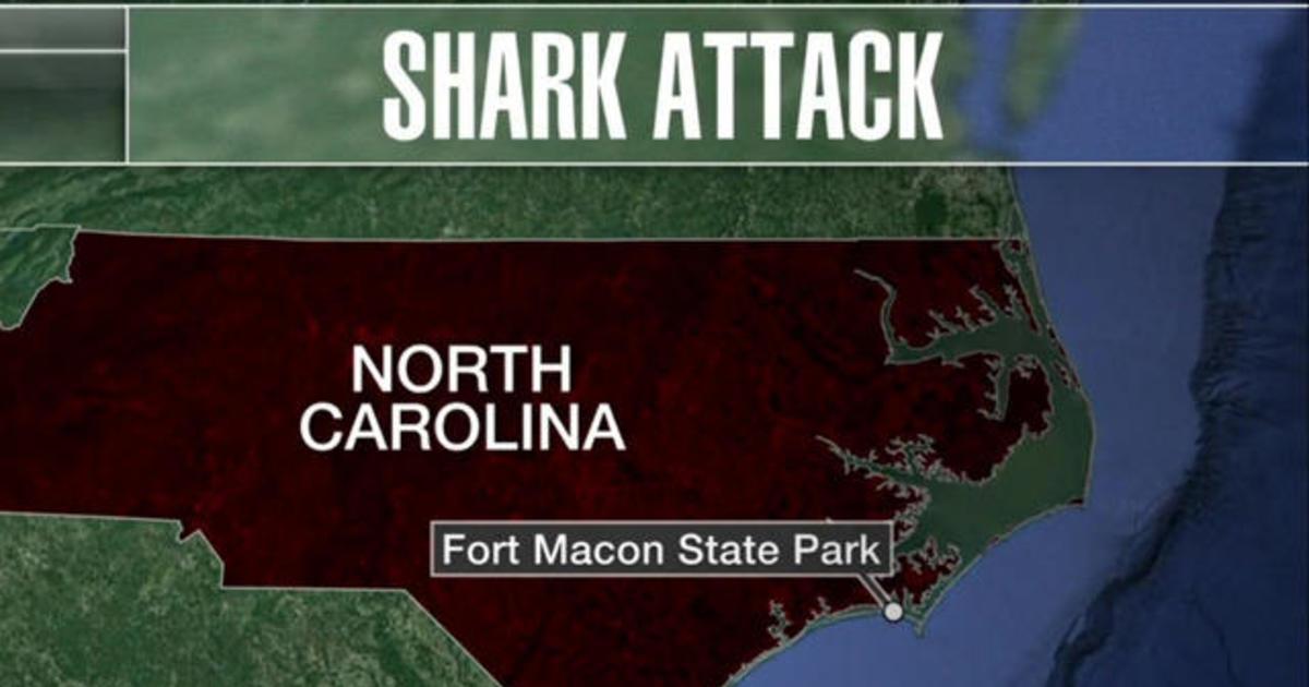 Teen survives shark attack in North Carolina - CBS News