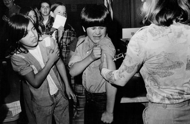 measles_1970s