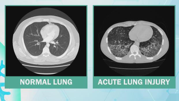 lung-injury-620.jpg