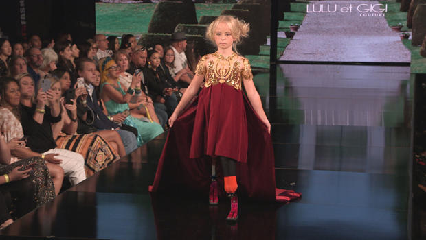 The 9-year-old double amputee walking the runway at Fashion Week