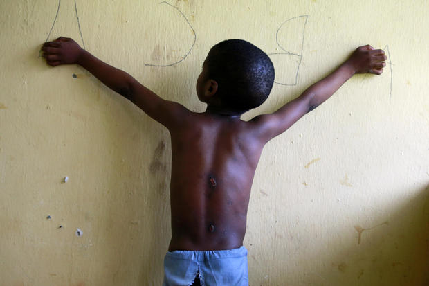 A 6 year-old-boy, one of hundreds of men and boys rescued by police from an institution purporting to be an Islamic school, reveals scars on his back at a transit camp set up to take care of the released captives in Kaduna