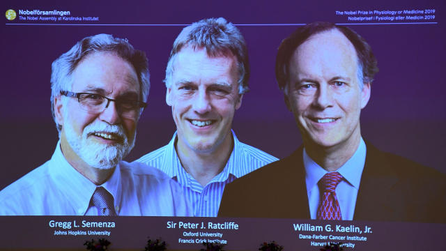 From left to right, the winners of the 2019 Nobel Prize in physiology or medicine, Gregg Semenza of the U.S., Peter Ratcliffe of Britain and William Kaelin of the U.S., appear on a screen during a press conference at the Karolinska Institute in Stockholm, Sweden, on October 7, 2019.