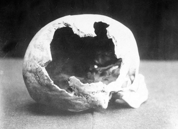 borden11-abby-skull.jpg