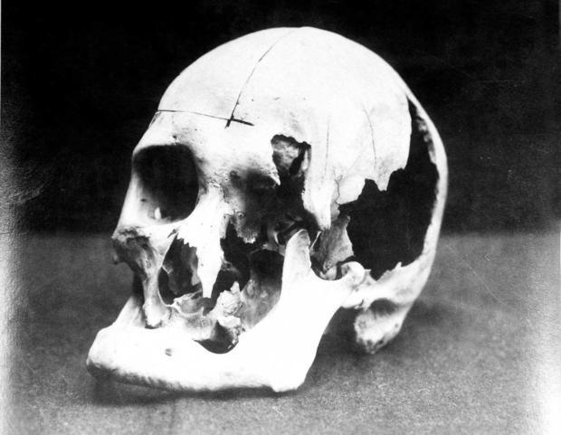 borden10-andrew-skull.jpg