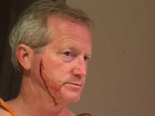Mike Reuschel cut on face