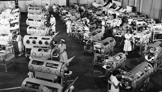 polio-iron-lungs-620.jpg