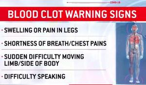 cbsn-fusion-doctors-warn-of-potentially-deadly-blood-clots-in-covid-19-patients-thumbnail-490510-640x360.jpg