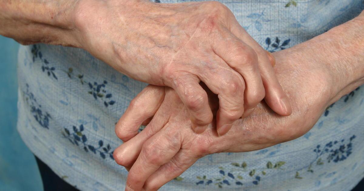 Study: Blood tests could predict painful rheumatoid arthritis flares thumbnail
