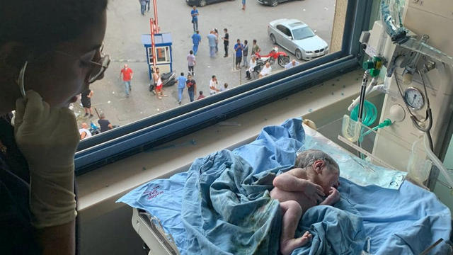 George, a boy that was born as the blast wave hit the hospital, is seen after birth in Beirut