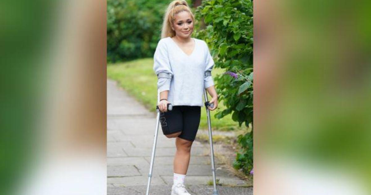 Frontline nurse forced to amputate leg after ignoring pain to care for coronavirus patients